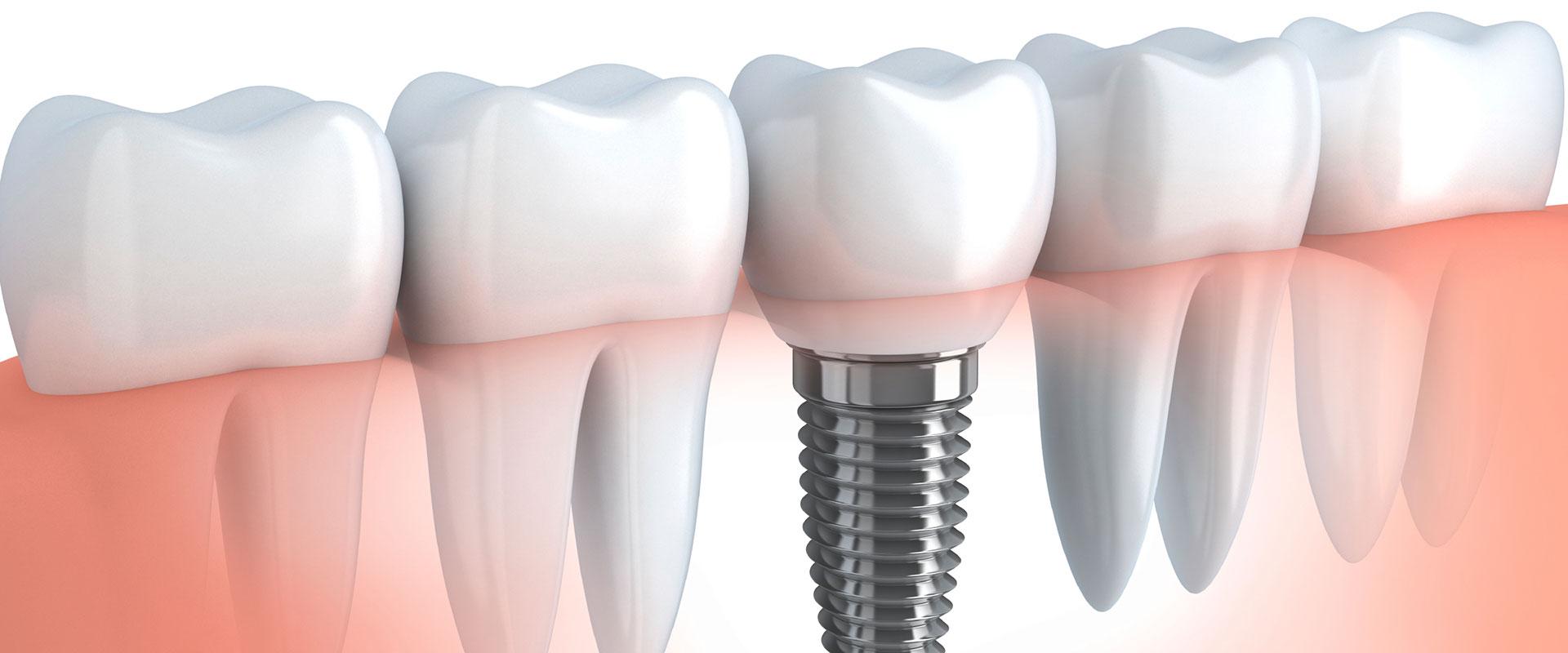 De ce sa înlocuiești un dinte lipsă